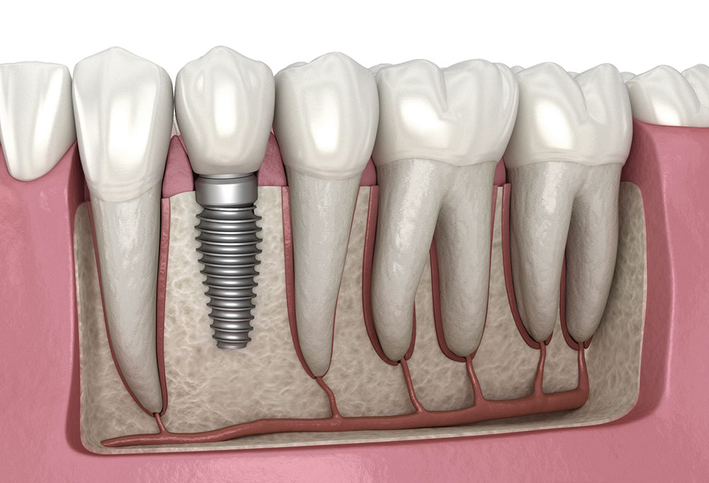 Care You Need to Take Before and After Dental Implantation